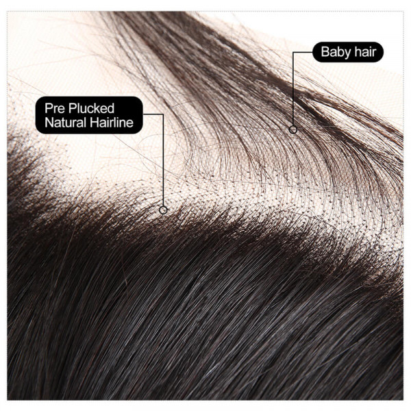 Bundle Deals With Frontal