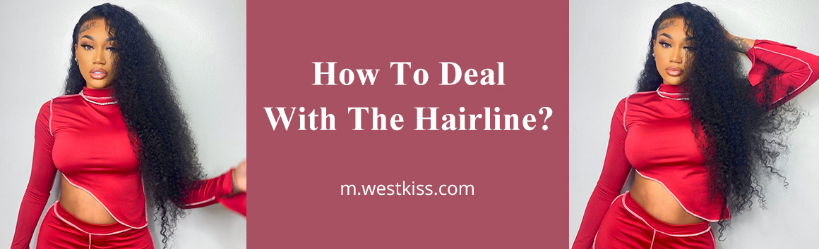 How To Deal With The Hairline?